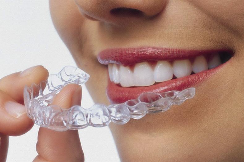 Bilan Dentaire